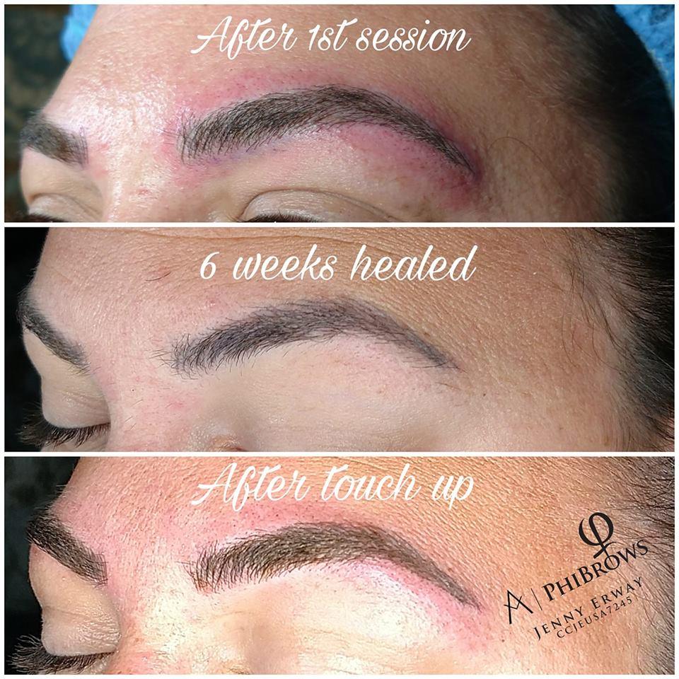 Healed pigment retention